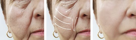 Woman elderly face skin wrinkles cosmetology rejuvenation before and after procedures, arrow royalty free stock image