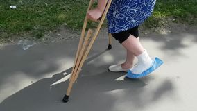 A woman with excessive weight is on one leg and on crutches. The second leg is broken. The plaster is fixed on the foot. Hardly jumps on the street stock video