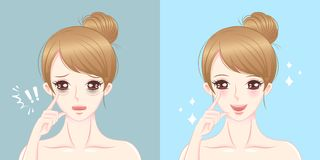 Woman with eye bags surgery. Woman eye bags before and after on the blue background vector illustration