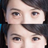 Woman eye bags. Vefore and after on the blue background stock image