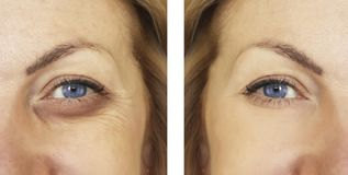 Woman, eye swollen before and after procedures, treatm. Woman, eye swollen before and after procedures, removal dermatology royalty free stock images