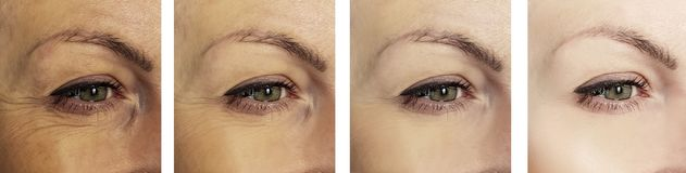 Woman eye wrinkles before and after removal difference collage procedures. Woman eye wrinkles before and after procedures collage difference removal royalty free stock photos