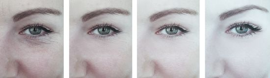 Woman eyes removal aging wrinkles correction before and after, beautician collage royalty free stock image