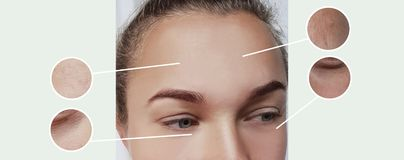 Woman eyes wrinkles bloating therapy contrast before and after procedures collage. Woman eyes wrinkles bloating before after procedures collage contrast therapy stock photos