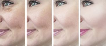 Woman eyes removal wrinkles correction before and after, beautician collage royalty free stock images