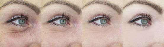 Woman eyes wrinkles before and after, collage stock images