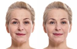 Middle aged woman face before and after cosmetic procedure. Plastic surgery concept. royalty free stock image