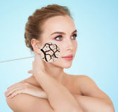 Woman face with dehydrated cracked dry skin Royalty Free Stock Images
