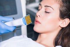 Woman face fractional treatment Stock Photos