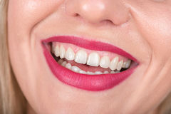 Woman Face with Laugh. White Teeth and Red Lipstick in Use. Studio Photo Shoot. Stock Photos