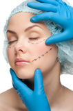 Woman face before plastic surgery operation Royalty Free Stock Image