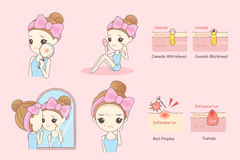 Woman Face problem Concept. Cartoon skin care woman with acne and magnifying glass check it, beauty Stock Images