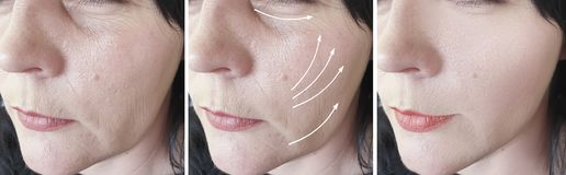 Woman face removal wrinkles correction cosmetology lifting arrow treatment before and after correction , collage. Woman face wrinkles removal before after royalty free stock photo