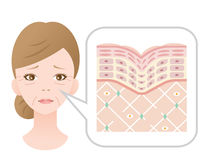 Woman face with winkles. Diagram of old skin showing the collagen framework is broken and wrinkles appears Stock Images