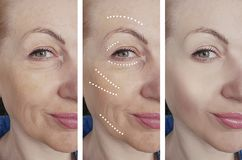 Woman face wrinkles before after hydrating difference hydrating treatment biorevitalization correction , tension stock photography