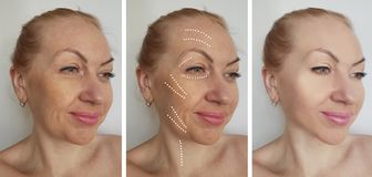 Woman face wrinkles before after hydrating therapy hydrating treatment biorevitalization correction procedures, tension royalty free stock photography