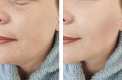Woman face wrinkles  lifting  filler  correction before after antiaging revitalization treatments. Woman  face wrinkles before and after treatments stock photography