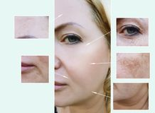 Woman face wrinkles before and after aging procedures, pigmentation dermatology. Woman face wrinkles before and after procedures, pigmentation effect aging stock images