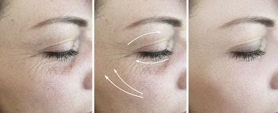 Woman face removal wrinkles correction cosmetology lifting  arrow treatment regeneration before and after correction  , collage. Woman face wrinkles removal royalty free stock photography
