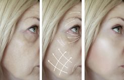 Woman face wrinkles removal cosmetology dermatology patient medicine before and after difference treatment procedures, arrow. Woman face wrinkles removal before royalty free stock images