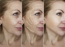 Woman face wrinkles removal dermatology before and after difference treatment procedures, arrow. Woman face wrinkles removal before and after procedures, arrow royalty free stock images