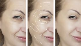 Woman face wrinkles removal dermatology medicine before and after difference treatment procedures, arrow. Woman face wrinkles removal before and after procedures royalty free stock photo