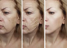 Woman face wrinkles removal therapy dermatology before and after difference treatment procedures, arrow. Woman face wrinkles removal before and after procedures royalty free stock image
