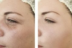 Woman face wrinkles lifting filler before after antiaging revitalization treatments. Woman  face wrinkles before and after treatments revitalization    lifting royalty free stock images