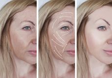 Woman facial wrinkles correction beautician results lifting difference before and after procedures arrow. Woman facial wrinkles correction before and after royalty free stock photography