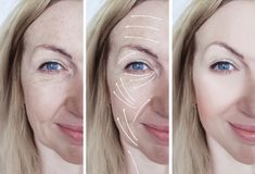 Woman facial wrinkles correction difference before and after procedures arrow. Woman facial wrinkles correction before and after procedures arrow treatment stock photos