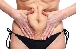 Woman fat belly. Overweight and weight loss concept Royalty Free Stock Image