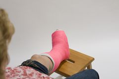 Woman with foot in cast Royalty Free Stock Photos
