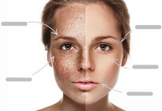 Woman freckle half-face happy young beautiful portrait with healthy skin half. Woman freckle half-face happy young beautiful studio portrait with healthy skin Royalty Free Stock Photos