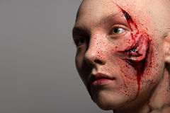 Woman with the gash prepared for operation Stock Photo