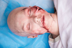 Woman with the gash prepared for operation Royalty Free Stock Photos