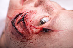 Woman with the gash prepared for operation Royalty Free Stock Image