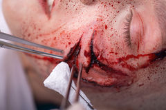 Woman with the gash prepared for operation Royalty Free Stock Photography