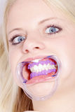 Woman gets bleaching from dentist Stock Image