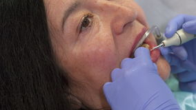 Woman gets deep dental cleaning. Senior caucasian woman getting deep dental cleaning. Close up of dentist removing plague from client`s teeth. Camera tilting stock video footage