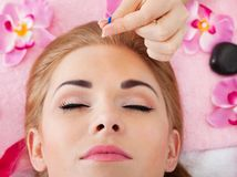 Woman Getting Acupuncture Treatment. Close-up Of A Young Woman Getting Acupuncture Treatment Stock Photo
