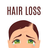 Woman with hair loss problem. Woman suffering from hair loss. Alopecia treatment and transplantation concept. Can be used by clinics and diagnostic centers Stock Photo