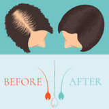 Woman before and after hair treatment Royalty Free Stock Photo