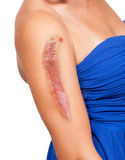 Woman has a big scar on her arm Stock Image