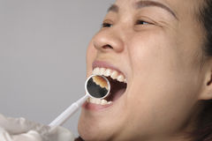 Woman has checking toot and mouth. By dental mirror Royalty Free Stock Image
