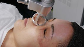 Fractional laser CO2. Cosmetic procedure. Woman having a laser skin treatment in a skincare clinic, a resurfacing. Woman having a laser skin treatment in a stock footage