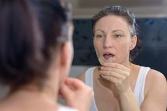 Woman holding a bite plate to prevent grinding. Woman holding an upper bite plate to prevent grinding her teeth together as she looks at her reflection in the royalty free stock photo