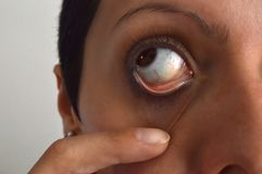 Woman holding the eyelid Royalty Free Stock Images