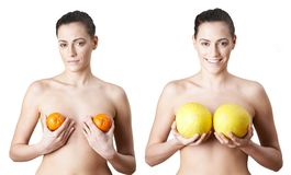 Woman Holding Satsumas And Melons To Illustrate Breast Enlargement Surgery. Woman Holds Satsumas And Melons To Illustrate Breast Enlargement Surgery royalty free stock image