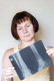 Woman holding x-ray image Stock Images