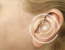 Woman hurts ear medicine sickness concept. Woman hurts ear sickness medicine concept royalty free stock image